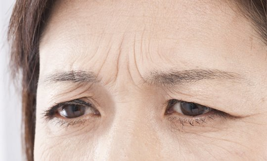 A-ge Liner Forehead Face Stretcher