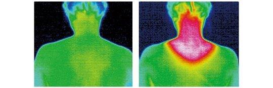 Nacken-Streck-Kissen mit Wärme