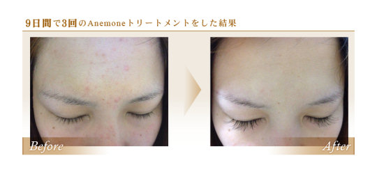 Anemone 3D Ultrasonic Face Cleanser