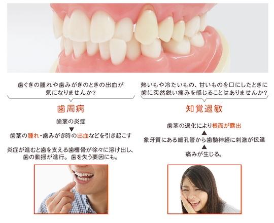 Soladey Gum Treatment plus Toothpaste