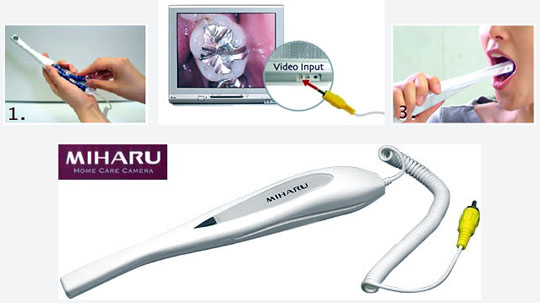 Miharu - Dental Intraoral Plaque Detection Camera
